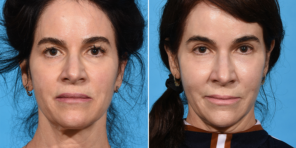 Before and after eyelid lift surgery