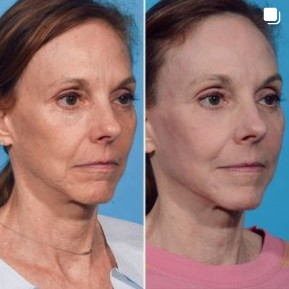 Before and after Facial Fat Grafting with Laser Resurfacing