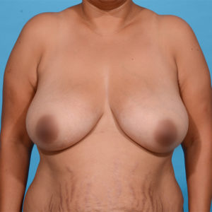 before breast lift front