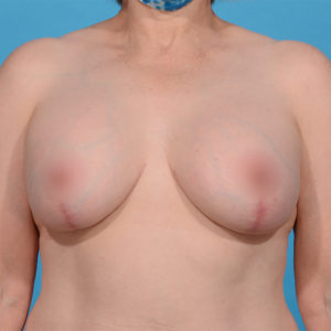 after breast lift front