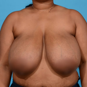 before breast reduction front