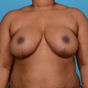 after breast reduction front