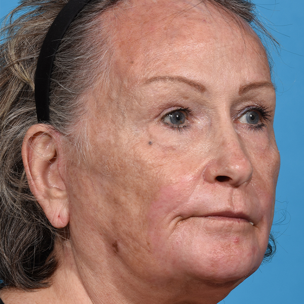 after laser resurfacing angle right