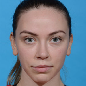 after rhinoplasty front