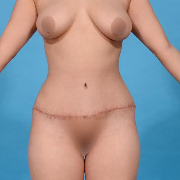 after tummy tuck front