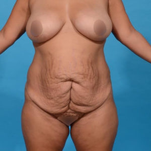 before tummy tuck front