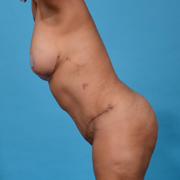 after tummy tuck left