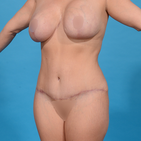 after tummy tuck angle left