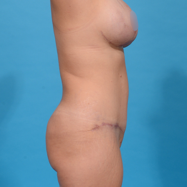 after tummy tuck right